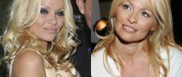Nueva cirugia de Pamela Anderson??!!