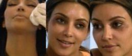 Kim Kardashian con moretones en los ojos ¡Por reacción al Botox!