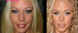 El Antes y el Después de la nariz de Kendra Wilkinson