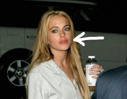 labios de Lindsay Lohan
