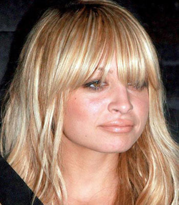 Nicole Richie se inyectó los labios