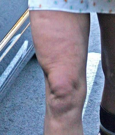 Britney Spears mostró lipo figura