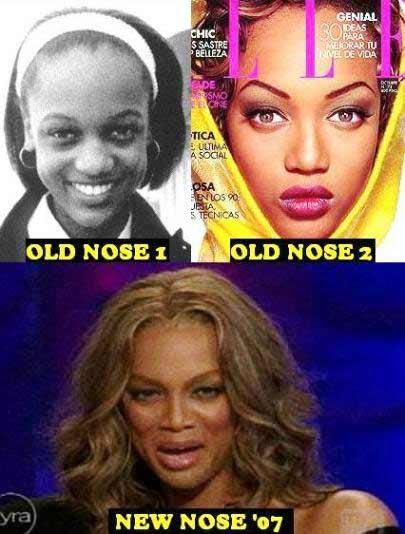 cirugías de nariz Tyra Banks