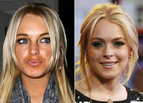 La nueva boca de Lindsay Lohan