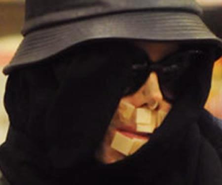 Cirugía de emergencia para Michael Jackson