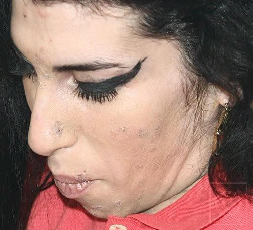 Amy Winehouse volvió a rehabilitación