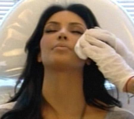 Kim Kardashian ojos morados por Botox 2
