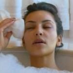 Kim Kardashian ojos morados por Botox 4