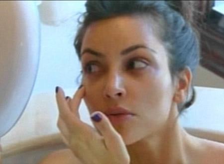 Kim Kardashian ojos morados por Botox 5