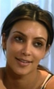 Kim Kardashian ojos morados por Botox 6