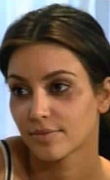 Kim Kardashian ojos morados por Botox 7