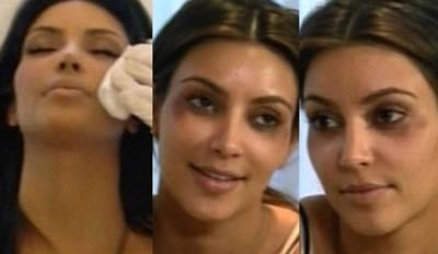 Kim Kardashian ojos morados por Botox port