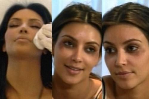Kim Kardashian ojos morados por Botox