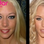 Nariz Kendra Wilkinson port